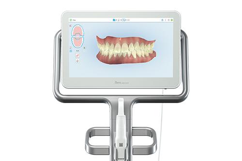 3D口腔内光学スキャナー